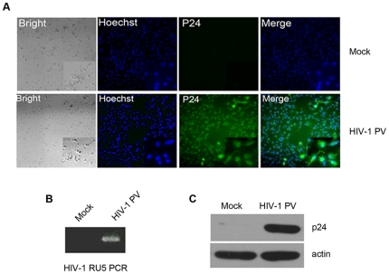 Infection of MDM by HIV-1 PV. Monocytes were isolated from the peripheral blood of healthy donors and culture for 7 days in RPMI 1640 supplemented with 10% heat-inactivated fetal bovine serum, penicillin (100 U/ml), streptomycin (100 µg/ml), and M-CSF (250 ng/ml) to allow the cell differentiation. The MDM cells were infected with HIV-1 PV at a multiplicity of infection (MOI) of ∼3 in the presence of 10 ng/ml of polybrene for 4 hr and cultured for 7 more days. MDM from the same donor treated with polybrene at 10 ng/ml and mock infected with the supernatant of HEK 293T/17 cells transfected with SG3ΔEnv only were used as control. The cells were analyzed with immunofluorescence staining ( A ) and Western blotting ( C ) for the viral p24 protein expression, and by HIV DNA PCR ( B ) for the presence of integrated proviral DNA.