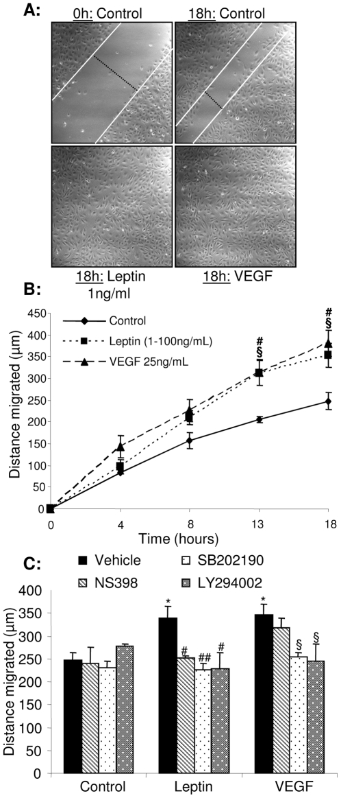 Leptin-stimulated endothelial cell migration is attenuated by blockade of p38 MAPK , Akt or COX-2 activities. A. Confluent monolayers of quiescent HUVEC were scratch wounded and treated with either vehicle (control), leptin (1–100 ng/mL) or VEGF (25 ng/mL). The rate of wound closure was monitored in real time by confocal microscopy (B). C. Confluent cells were exposed to vehicle, leptin or VEGF in the presence or absence of NS398, SB202190 or LY294002 (1 µmol/L), wounded, and migration monitored (18 h). Data in B and C are mean ± SEM of 3 separate experiments with duplicate observations per treatment. * p