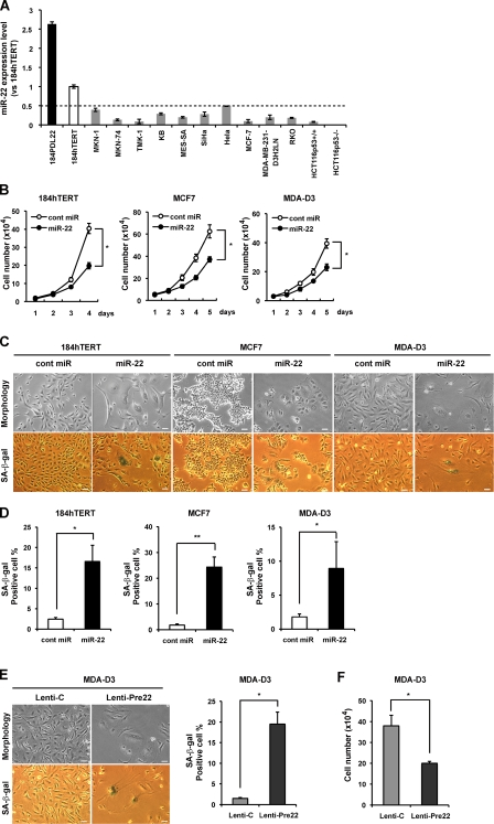 Overexpression of miR-22 induces senescence-like phenotypes in human breast epithelial and breast cancer cells. (A) qRT-PCR analysis shows relative quantitation of miR-22 expression level (vs. 184hTERT) in human epithelial and various cancer cells. Expression levels of miR-22 in various cells were relative to that in 184hTERT cells set at 1. U6 was used as an internal normalization control. The dashed line represents the threshold of expression level (0.5-fold vs. 184hTERT). (B) Cell proliferation assay was performed after transfection of miR-22, and cells were counted for the indicated days, compared with control cells. Each value was determined in triplicate. *, P