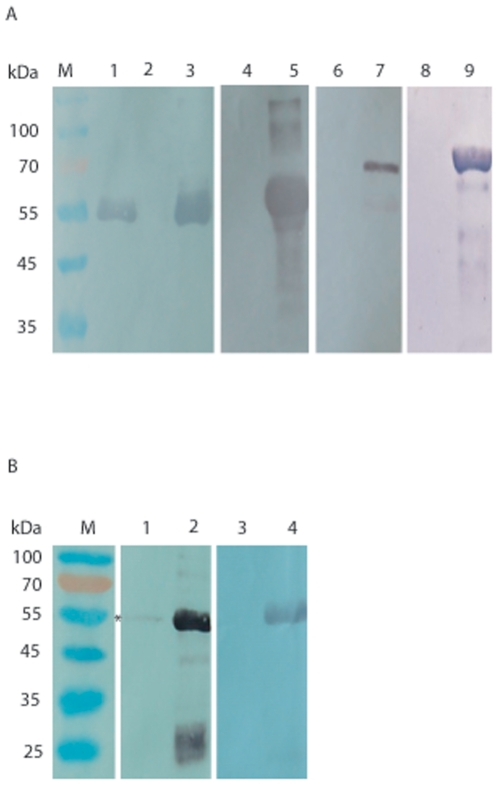 Binding of Sjc23-LED with immunoglobulins in pull-down assay. A Human <t>IgG</t> (lane 1), IgA (lane 4), <t>IgE</t> (lane 6), and IgM (lane 8) were incubated with Sjc23-LED bound Sepharose resin, after extensive washing, the proteins were resolved in SDS-PAGE and blotted to nylon film. The immunoglobulins that bound to Sjc23-LED was detected by using mAbs specific for human antibodies (γ-chain, α-chain,ε-chain or µ-chain specific). Only human IgG could specifically bind to Sjc23-LED, whereas the other antibody types did not. GST did not bind human IgG (lane 2). Lanes 3, 5, 7 and 9 were corresponding antibodies as controls for detection. B Porcine and bovine IgG was respectively incubated with Sjc23-LED bound Sepharose resin and only porcine IgG was marginally precipitated (lane 1, the band was indicated with an asterisk). Lane 2 and 4 were controls of the corresponding IgGs.