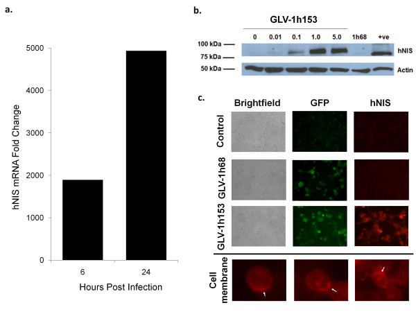 Assessment of hNIS expression in GLV-1h153-infected PANC-1 cells . a. Microarray analysis of cells infected with an MOI of 5.0 of GLV-1h153 yielded an almost 2000-fold increase by 6 hours and an almost 5000-fold increase by 24 hours in hNIS mRNA production as compared to noninfected control. b. PANC-1 cells were either mock infected or infected with GLV-1h68 at an MOI of 1.0 or infected with GLV-1h153 at an MOI of 1.0 or 5.0 for 24 hours. The hNIS protein was detected by Western blot analysis using monoclonal anti-hNIS antibody. Only GLV-1h153-infected cells expressed the hNIS protein, but cells either mock infected or infected with GLV-1h68 did not. The molecular weight marker bands (in kiloDaltons) are shown on the left. c. PANC-1 cells were mock infected or infected with GLV-1h68 or GLV-1h153 at a MOI of 1.0 for 24 hours. The hNIS protein was detected by immunofluorescence microscopy using monoclonal anti-hNIS antibody, which recognizes the intracellular domain of the protein. Mock- or GLV-1h68-infected cells (as demonstrated by GFP expression) did not express the hNIS protein, whereas the hNIS protein on the cell membrane of PANC-1 cells infected with GLV-1h153 was readily detectable.