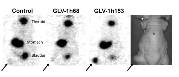 PET imaging of enhanced radiouptake in GLV-1h153-infected PANC-1 xenografts . Two × 10 7 PFU of GLV-1h153, GLV-1h68, or PBS was injected intratumorally into PANC-1 hindleg tumor-bearing mice. 124 I-PET scanning was obtained 48 hours after infection and 1 hour after radiotracer administration. GLV-1h153-infected PANC-1 tumors were easily visualized, while no enhanced signal was seen in the PBS- or GLV-1h68 injected tumors. The stomach and thyroid were also imaged due to native NIS expression, and the bladder due to tracer excretion.