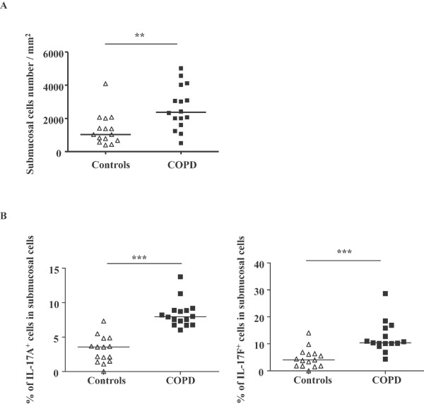 Percentage of <t>IL-17A</t> + and IL-17F + cells in airway submucosal cells of COPD patients . (A) Submucosal cells in airways of COPD patients. (B) Percentage of IL-17A + and IL-17F + cells in airway submucosal cells of COPD patients. Results are expressed as median (range), n = 15 and 16 subjects for controls and COPD patients respectively. ** P