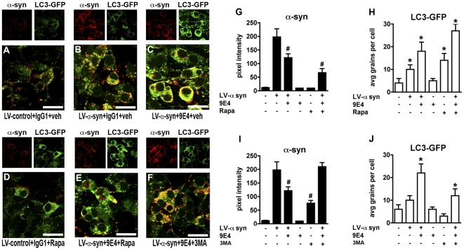 The effects of the 9E4 monoclonal antibody on promotion of α-syn clearance via autophagy in a neuronal cell model. (A) Baseline co-localization of α-syn and LC3-GFP in neuronal cells infected with LV-control and treated with the IgG1 control antibody. (B) Baseline co-localization of α-syn and LC3-GFP in neuronal cells infected with LV-α-syn and treated with the IgG1 control antibody. (C) Co-localization of α-syn and LC3-GFP in neuronal cells infected with LV-α-syn and treated with the 9E4 antibody. (D) Co-localization of α-syn and LC3-GFP in neuronal cells infected with LV-control, treated with the IgG1 control antibody and rapamycin, an inducer of autophagy. (E) Co-localization of α-syn and LC3-GFP in neuronal cells infected with LV-α-syn, treated with the 9E4 antibody and rapamycin, an inducer of autophagy. (F) Co-localization of α-syn and LC3-GFP in neuronal cells infected with LV-α-syn, treated with the 9E4 antibody and 3MA, an inhibitor of autophagy. (G) Analysis of α-syn immunoreactivity in neuronal cells infected with LV-α-syn, treated with the 9E4 antibody and rapamycin. (H) Analysis of LC3-GFP signal in neuronal cells infected with LV-α-syn, treated with the 9E4 antibody and rapamycin. (I) Analysis of α-syn immunoreactivity in neuronal cells infected with LV-α-syn, treated with the 9E4 antibody and 3MA. (J) Quantitative analysis of LC3-GFP signal in neuronal cells infected with LV-α-syn, treated with the 9E4 antibody and 3MA. Scale bar (A–F) = 10 µM (*) Indicates p