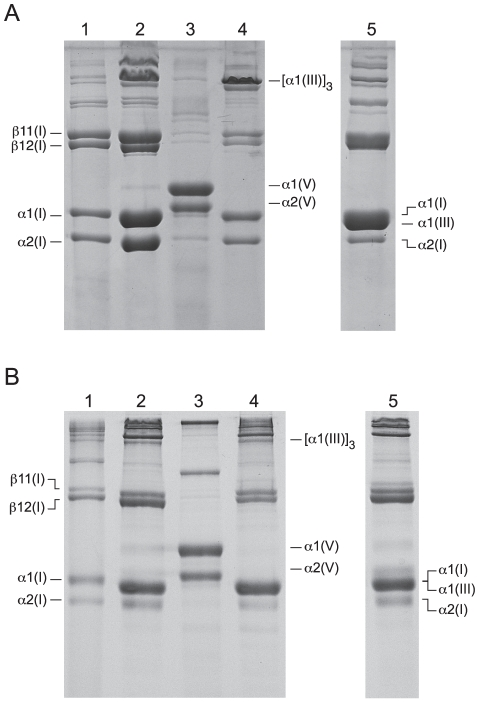 Isolated collagen species from chicken and xenopus on 6% SDS-PAGE. A, chicken collagens; lane 1, acid soluble fraction; lane 2, neutral 1.0 M salt soluble fraction ; lane 3, acid 1.2 M salt fraction; lane 4, neutral salt insoluble fraction; lane 5, reduced neutral salt insoluble fraction. B, xenopus collagens; lane 1, acid soluble fraction; lane 2, neutral 1.0 M salt soluble fraction; lane 3, acid 1.2 M salt fraction; lane 4, neutral salt insoluble fraction; lane 5, reduced neutral salt insoluble fraction. β11(I) and β12(I) are cross-linked α1-α1 and α1-α2 chain dimers, respectively.