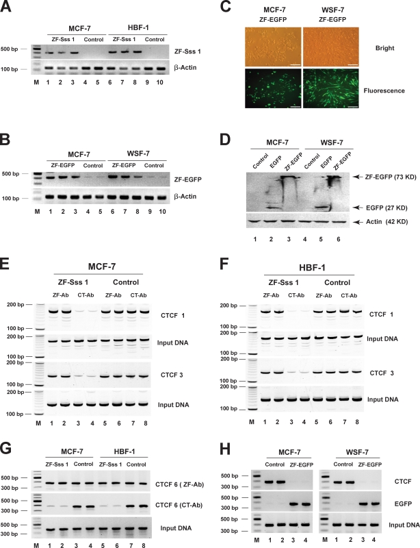 Overexpression of the decoy CTCF abolishes the IGF2/H19 ICR binding of the endogenous CTCF. The expression of decoy CTCF was measured by RT-PCR (A and B), fluorescence microscopy (C), and Western blotting (D). Binding of endogenous CTCF and decoy CTCFs to the ICR was detected by ChIP using two antibodies that recognize the CT and ZF regions of CTCF, respectively (E and F, CTCF sites 1 and 3; and G, CTCF site 6). The competitive binding of native CTCF and ZF-EGFP to the sixth site was detected by a GFP antibody that specifically recognizes the ZF-EGFP and an antibody against the CTCF CT domain (H). Bars, 400 µm.