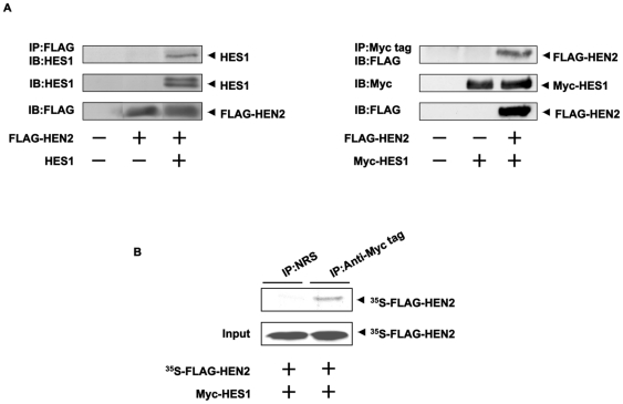 Interaction between HEN2 and HES1 in cells. (A) Neuro2a cells were co-transfected with the indicated combinations of expression plasmids. Forty-eight hours after transfection, cells were lysed and immunoprecipitated with anti-FLAG (left panel) or with anti-Myc tag antibody (right panel) and the immunoprecipitates were analyzed by immunoblotting with anti-HES1 or with anti-FLAG antibody, respectively. Aliquots of cell lysates were subjected to immunoblotting with anti-HES1, anti-FLAG or with anti-Myc tag antibody. (B) In vitro pull-down assay. Radio-labeled FLAG-HEN2 was incubated with cell lysates prepared from Neuro2a cells transfected with Myc-HES1 expression plasmid. The reaction mixture was immunoprecipitated with normal rabbit serum (NRS) or with polyclonal anti-Myc tag antibody and separated by SDS-PAGE followed by autoradiography. 1/5 inputs were also shown.