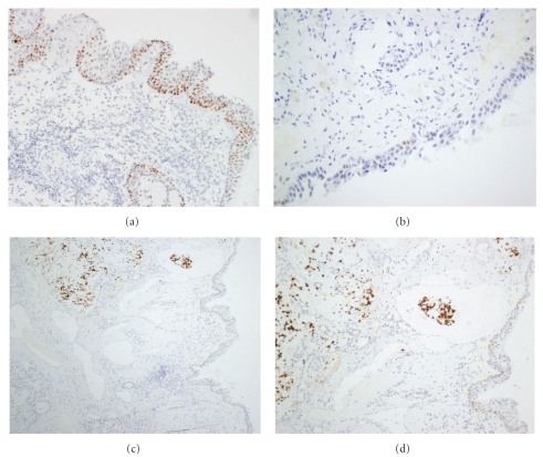 Immunohistochemical analysis of <t>p53</t> expression. (a) Moderate, diffuse staining in basal and suprabasal cells in squamous metaplasia; (b) weak, focal staining in mild dysplasia; (c) strong staining in a mucinous type ITAC, with weak/moderate staining in adjacent immature metaplasia and seromucous glands; (d) details of (c). H E staining, original magnification 200x (a, b, and d) and 100x (c).