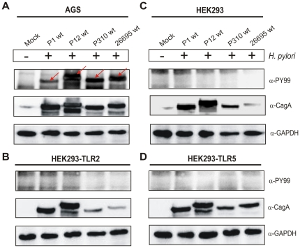 CagA injection by H. pylori cannot be achieved in infected HEK293 cell lines but in AGS gastric epithelial cells. Western blot analysis of (A) AGS, (B) HEK293-TLR2, (C) HEK293 and (D) HEK293-TLR5 cells infected with H. pylori wild-type strains P1, P12, P310 or 26695 for 6 hours. Phosphorylation of injected CagA was monitored using phosphotyrosine α-PY-99 and α-CagA antibodies. Red arrows indicate the position of phosphorylated CagA on the blot. Western blots for the house keeping gene GAPDH served as loading control.