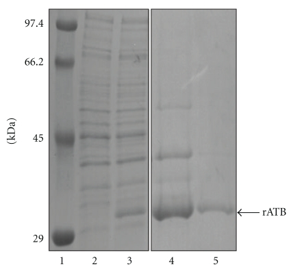 SDS-PAGE (12.5% polyacrylamide gel) of rATB. Lanes: 1: molecular size markers; 2: E. coli BL21 (pET28arATB) prior to induction; 3: E. coli BL21 (pET28arATB) after induction; 4: 5 μ g denatured rATB in inclusion bodies; 5: 1 μ g refolded soluble rATB.