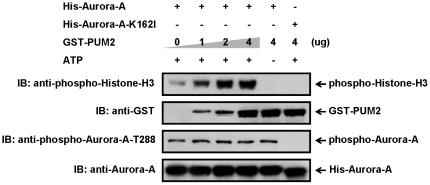 Increase of Aurora-A kinase activity by PUM2 in a dose-dependent manner. Recombinant His-tagged Aurora-A or kinase-inactive Aurora-A mutant protein (K162I) was incubated with the indicated amount of GST-PUM2 for 20 min at 30°C in kinase reaction buffer containing histone-H3 and ATP. The activity of Aurora-A was detected by immunoblotting using the anti-phospho-Aurora-A-T288 and the anti-phospho-Histone-H3 antibodies.