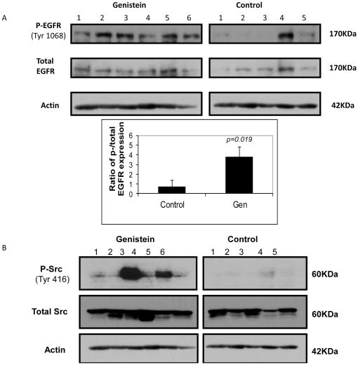 Effects of genistein on EGFR signaling. a) Genistein increases phosphorylation of EGFR at tyrosine 1068 residue. Below is the quantification of band intensity for phosphorylated EGFR from protein lysates of 5 untreated control and 6 genistein-treated tumors. Columns : mean ratio of phosphorylated EGFR/total EGFR protein band intensity ± SD. b) Genistein affects phosphorylation of Src at tyrosine 416 residue. Activated Src expression is significantly higher in genistein-treated tumors than that in untreated control. Lanes represent proteins from individual tumors.
