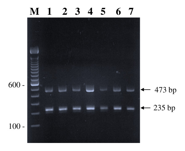 Species-specific identification of M. tuberculosis isolates by multiplex PCR . Representative agarose gel of amplicons of multiplex PCR from 7 selected multidrug-resistant M. tuberculosis isolates (lanes 1-7) showing M. tuberculosis -specific amplification of two fragments of 473 bp and 235 bp (marked by arrows) from oxyR and rpoB genes, respectively. Lane M is 100 bp DNA ladder and the position of migration of 100 and 600 bp fragments are marked.
