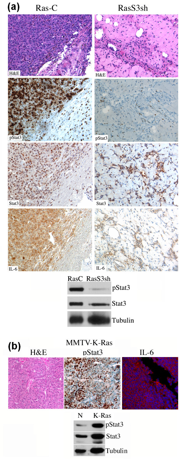 Ras expressing mammary tumors exhibit high levels of activated Stat3 and IL-6 . (a) Paraffin embedded tumors from MCF10A-Ras cells expressing control (Ras-C) or Stat3shRNA (RasS3sh) were examined by hematoxyline and eosin (H E), pStat3 and IL-6 by immunohistochemistry. Extracts from MCF10A-Ras expressing control (C) or Stat3 shRNA (S3sh) tumors were analyzed for pStat3 and Tubulin by Western blot analysis. (b) Paraffin embedded tumors from MMTV-promoter driven K-Ras (MMTV-K-Ras) were analyzed by hematoxyline and eosin stain (H E), for pStat3 by immunohistochemistry and for IL-6 by immunofluorescence. Extracts from normal mammary tissue (N) or MMTV-K-Ras (K-Ras) were analyzed for pStat3, Stat3 and Tubulin.