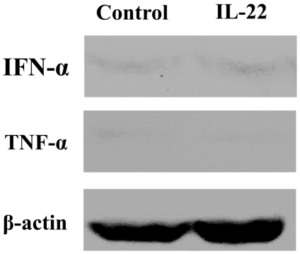 Expression of <t>IFN-α</t> and TNF-α in A498 xenografts after rIL-22 treatment. Western blot assay was performed to detect the expression of IFN-α and TNF-α in the A498 cell xenografts. Neither the expression of IFN-α nor TNF-α were increased significantly in A498 cell xenografts treated with rIL-22 (P > 0.05 compared with control). N = 2.