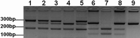 Agarose gel electrophoresis of the polymerase chain reaction based restriction fragment length polymorphism (PCR-RFLP) analysis of XPD and XRCC1 . (Lanes 1–5) PstI digested fragments of exon 23 c.2298A > C XPD SNP. (Lane 1) AA genotype consisting of two fragments; 290 and 146 bp. (Lanes 2, 3, and 5) AC genotype consisting of four fragments; 290, 227, 146 and 63 bp. (Lane 4) CC genotype consisting of three fragments; 227, 146, and 63 bp. (Lanes 6–9) MspI digested fragments of exon 10 c.1316G > A XRCC1 SNP. (Lane 7) GG genotype consisting of two fragments; 148 and 94 bp. (Lanes 6 and 8) AG genotype consisting of three fragments; 242, 148, and 94 bp. (Lane 9) AA genotype consisting of an undigested fragment of 242 bp.