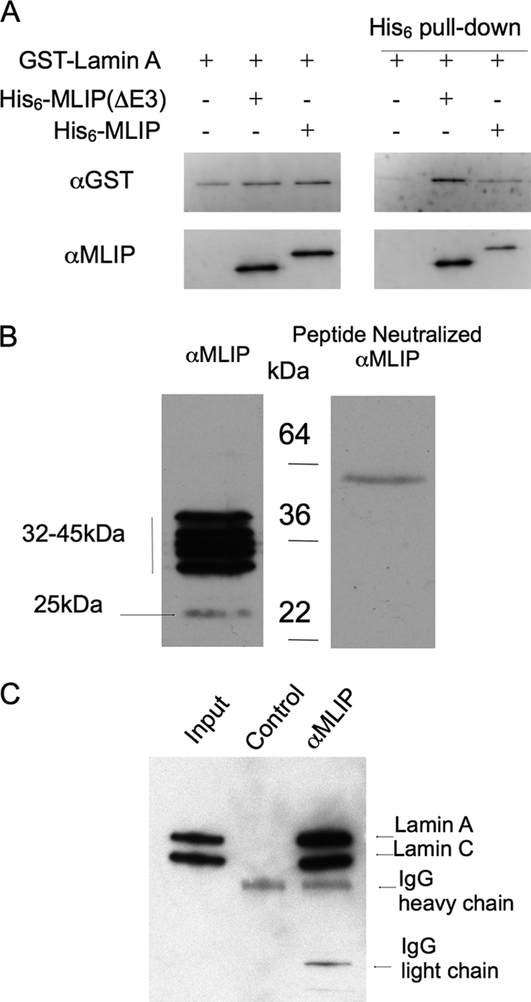 MLIP specifically binds lamin A/C. A , purified recombinant MLIP binds directly within the first 230 amino acids of recombinant lamins A and C in an in vitro immunoprecipitation assay. Purified recombinant His 6 -MLIP and GST-lamin A were mixed together (as indicated) with complexes precipitated through the His tag. Western blot analysis was performed using anti-GST (Cell Signaling) and anti-MLIP polyclonal antibodies. A 1:10 dilution of the total starting material was run on the same gel ( left panels ). The assay was repeated two additional times with similar results. B , MLIP peptide neutralization of the anti-MLIP serum demonstrates the specificity of the MLIP antibodies in Western blot analysis. C , MLIP co-immunoprecipitates with lamin A/C from adult mouse hearts. Total mouse heart lysates were divided 45%:45%:10% with 45% incubated with either anti-MLIP serum or MLIP peptide neutralized anti-MLIP serum ( Control ). The input control for the immunoprecipitation represents ∼2% of total heart lysate.