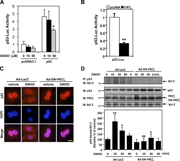 PKCζ mediates ONOO − -induced p53 nuclear export and p53–Bcl-2 binding instead of the regulation of p53 transcriptional activity. (A and B) HUVECs were transfected with the p53-Luc reporter and Renilla luciferase–encoding plasmid (pRL- thymidine kinase) used as an internal control reporter together with p53–wild type or vector alone (pcDNA3.1; A). Some cells were further transfected with or without pcDNA3.1-CATζ (B). Transcriptional activity was determined by a reporter plasmid encoding 13 copies of the p53-binding sequence (p53-Luc reporter; Kern et al., 1992 ). After 24 h of transfection, p53 transcriptional activity was assayed using the dual-luciferase kit (B), or the cells were further treated with 10 or 50 µM ONOO − for 8 h as indicated, and luciferase activity was assayed (A). Data are representative of triplicates using two or more different preparations of ECs. *, P