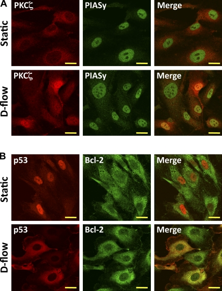 D-flow–induced PKCζ–PIASy association in nuclei and p53–Bcl-2 binding in the cytosol. (A and B) HUVECs were stimulated with either static or d-flow for 3 h and immunoassayed with antibodies of mouse anti-PKCζ and rabbit anti-PIASy (A) or mouse anti-p53 and rabbit anti–Bcl-2 (B). After d-flow stimulation, yellow in the merged images represent colocalization between PKCζ and PIASy in nuclei or p53 and Bcl-2 in cytosol. Images were recorded using a confocal microscope equipped with a Plapon 60× 1.42 NA oil lens objective. Shown are representative images from cells analyzed from three independent experiments in which ≥30 cells were analyzed per experiment. Bars, 10 µm.
