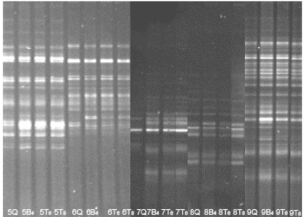 DGGE on DNA extracted by three different treatment methods from faecal samples. Example of DGGE runs of PCR products from five stool samples by different DNA extractions. DGGE profiles (30-65% denaturant) from faecal samples on DNA extracted by three different treatment methods and treatment times. ( B ) pre-treatment by Mini BeadBeater 8 ( T ) pre-treatment by TissueLyser, ( Q ) no pretreatment. All subsequent DNA extractions were performed by the QIAamp DNA stool MiniKit. The agitation time was 4 minutes for the Mini BeadBeater 8, and 6 minutes and 8 minutes for the TissueLyser. (The picture is compiled from two gel images, aligned according to the reference lane comprising an internal standard (not shown)).