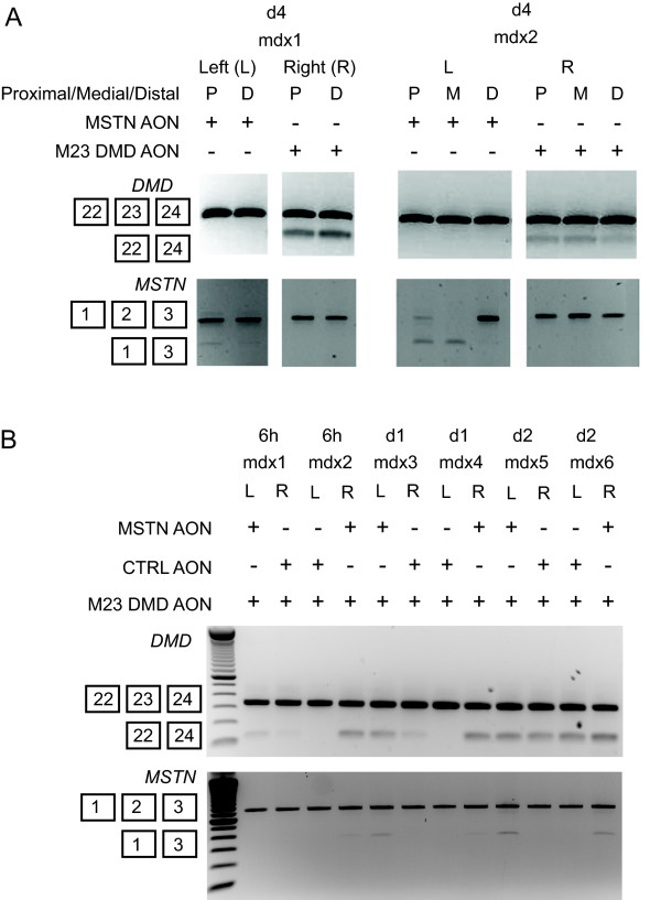 Administration of myostatin AON in mdx mice . Single dose of 40 μg MSTN AON was injected into the gastrocnemius muscles of mdx mice. Control M23 DMD AON were injected in the contralateral muscles. The animals were sacrificed 4 days after injection. RNA was isolated from three different parts of the muscles relative to the tendon: proximal (P), medial (M) and distal (E). RT-PCR analysis was performed to detect dystrophin (upper) or myostatin (lower) skips (A). Four times consecutive injections were performed with cocktails of AON containing 40 μg of m23 DMD AON and 40 μg of either myostatin or control AON into the gastrocnemius muscles of mdx mice. Injections were varied between contralateral muscles. The mice were sacrificed at 6 hours, 1 day and 2 days after the last injection. RNA was isolated from multiple areas within the muscles and analyzed for dystrophin (upper) or myostatin (lower) skips by RT-PCR (B).