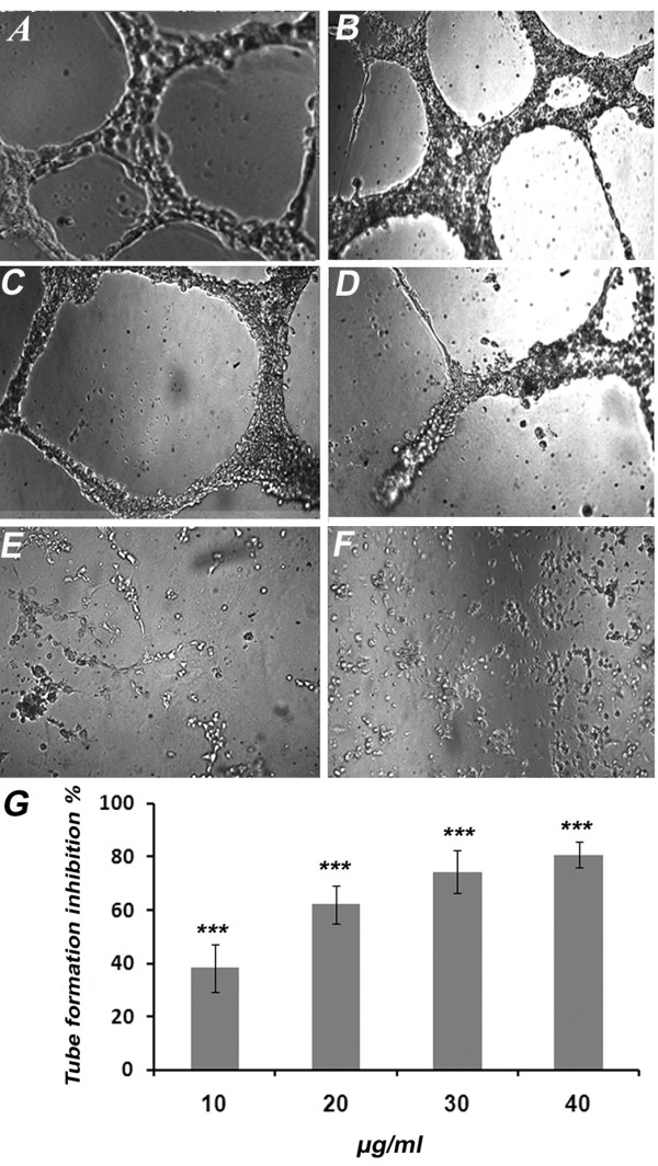 Effects of KA on HUVECs Differentiation . Effect of KA on matrigel tube formation of endothelial cells. Cells treated with (A) 1% ethanol (B) 10 μg/ml (C) 20 μg/ml and (D) 30 μg/ml (E) 40 μg/ml and (F) 100 μg/ml suramin as a positive control (4X). (G) The Dose response relationship of KA on rat aorta assay. The inhibitory effect was found to be in dose response manner. Data was represented as mean ± SD (n = 3). *** P