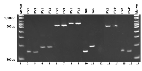 Amplification pattern by <t>RT-PCR</t> with the site-specific primer pairs for intron-F and G . PCR products of from cDNA amplified with the primers <t>inF-F</t> and inF-R are eluted in lanes 2, 3, 15 and 16, and with primers inG-F and inG-R in lanes 4 and 5. PCR products from genomic DNA amplified with primer pair for intron-F are eluted in lanes 6, 7, 10, 13 and 14, and with primer pair for intron-G in lanes 8, 9 and 11. Lane 12 is the negative control.