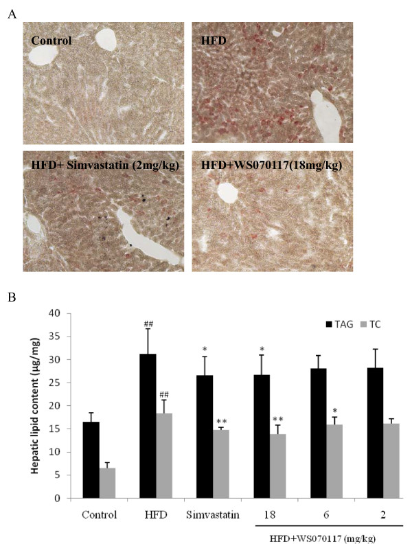 Effects of WS070117 on hepatic lipids accumulation in HFD fed hamsters . A : Representative frozen tissue sections of liver taken from hamsters fed chow diet, HDF diet, HFD+ simvastatin (2 mg/kg) and HFD+WS070117 (18 mg/kg) were stained with Oil Red-O to demonstrate the reduction in lipid droplets. B : Hepatic TC and TAG were measured in liver samples of control (n = 5), HFD, 8-weeks WS070117 (2, 6, 18 mg/kg) or simvastatin (positive control; 2 mg/kg) treated HFD fed hamsters (n = 8). ** P
