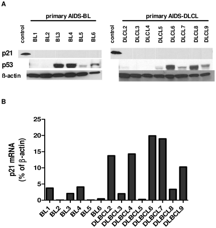 p21 protein and RNA expression in primary AIDS-NHL samples. ( A ) p21 Western blot analysis of primary AIDS- BL and AIDS-DLBCL samples. The blot was stripped and sequentially probed for p53 (Ab clone DO-7) and β-actin. No p21 protein expression was detected. The positive control is lysate from p21 cDNA transfected B cell line Ramos. ( B ) Taqman q-PCR of p21 mRNA levels in primary AIDS-NHL samples shown in A. In each sample, p21 mRNA level is shown as a % of β-actin expression, which is set to 100.