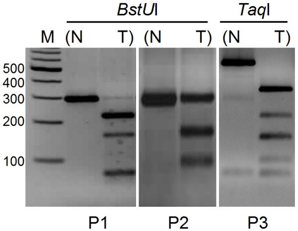 Methylation analysis of promoter regions by COBRA . Photographs are representative of tumor-specific methylation in three promoter regions. Amplicons of P1 and P2 are cut with Bst UI (left and middle), and Taq I digestion is applied to the PCR products of the P3 region (right). N: normal; T: tumor; M: marker.