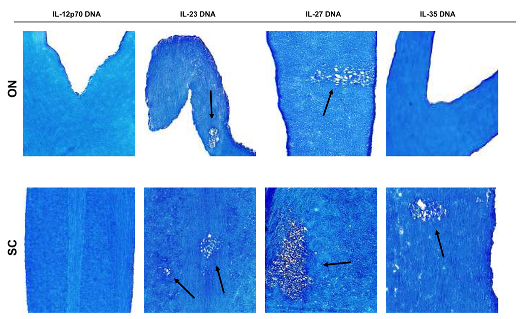 Effects of IL-12 family members on HSV-IL-2-induced demyelination BALB/c mice were injected intramuscularly 3X with IL-12p70 DNA, IL-23 DNA, IL-27 DNA, IL-35 DNA as described in Materials and Methods. Four hours after the third DNA injection, mice were infected ocularly with HSV-IL-2. On day 14 post infection, optic nerves and spinal cords were collected, fixed, sectioned, and stained with LFB. Representative photomicrographs are shown. Arrows indicate areas of demyelination. 10X direct magnification.