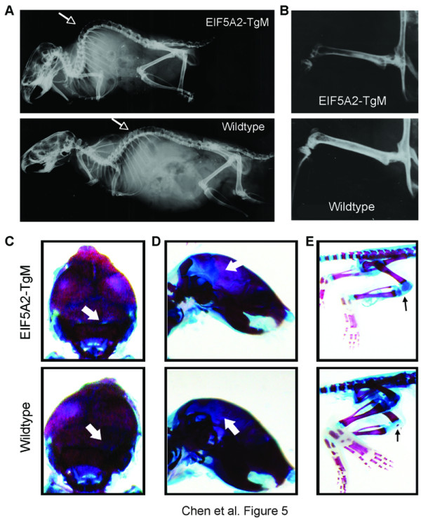 Skeletal aging phenotypes in <t>eIF-5A2</t> transgenic mice . (A) X-ray radiograph was used to examine skeletal changes in 24-week-old eIF-5A2 transgenic mouse (upper) and their wild-type sibling (lower). Kyphosis was observed in eIF5A2 mouse (indicated by an arrow). ( B ) Representative radiograph of the density of femur bone in an eIF-5A2 transgenic mouse (24-week-old) and a wild-type mouse. ( C, D ) Alcian blue and Alizarin red staining of skulls from a 2-week-old transgenic mouse (upper) and its wild-type sibling (lower). A wider cranial sutures ( C ) and fontanelle ( D ) were observed in transgenic pup (indicated by arrows). ( E ) Representative skeletal staining of hind limb in a 2-week-old transgenic mouse (upper) and its wild-type sibling (lower). A clear ossification of patella was observed in the knee joint of wild-type mouse but not in the transgenic mouse (indicated by arrows).