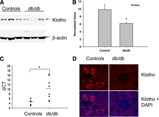 Diabetes decreases Klotho protein and message in db/db mice. Kidney cortex from eight control mice and eight db/db mice were lysed in radioimmunoprecipitation assay buffer for protein or in trizol reagent for RNA extraction. A : Representative Western blots probed with anti-Klotho antibody ( upper panel ) and normalized to β-actin as loading controls ( lower panel ). B : Immunoblotted Klotho and respective β-actin bands from eight mice were quantified using a Licor Image Analyzer and normalized to β-actin. Data are means ± SD of normalized arbitrary scan values. C : A decline in Klotho transcript, as measured by semiquantitative real-time PCR, is shown. Relative quantification of Klotho mRNA was performed using a MyiQ Single-Color Real-Time PCR Detection System and iQ SYBR Green Supermix, according to the manufacturer's instructions. Data were analyzed using the Δ C T method in reference to GAPDH. n = 8 controls; n = 8 db/db mice. Significantly different from controls by Student t test: * P