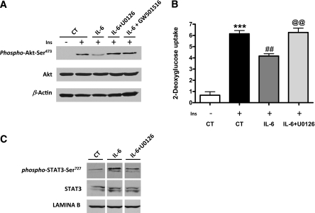 ERK1/2 inhibition prevents IL-6–induced insulin resistance and STAT3 phosphorylation on Ser 727 . Differentiated adipocytes were stimulated with 100 nmol/L insulin for 30 min, with or without pretreatment with either 10 μmol/L U0126, 10 μmol/L GW501516, or 100 ng/mL IL-6 for 24 h. A : Cell lysates were subjected to Western blot analysis for phospho-Akt(Ser 473 ) and total Akt and β-actin. B : 2-Deoxyglucose uptake was assessed without or with insulin. Values are means ± SD of six independent experiments. C : Nuclear cell extracts were subjected to Western blot analysis with phospho-STAT3 (Ser 727 ), STAT3, or Lamin B antibodies. *** P
