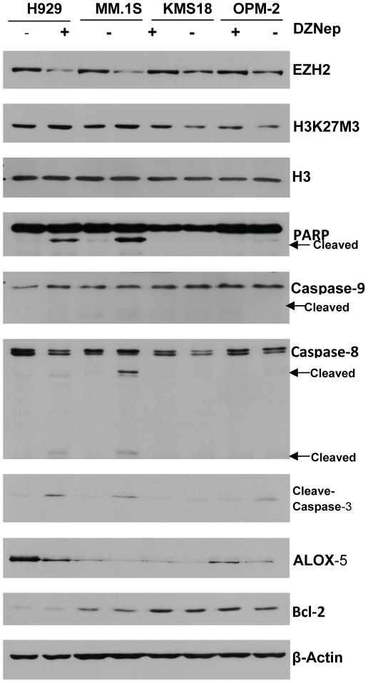 Analysis of DZNep effects by Western-blot and RT-PCR. DZNep reduced EZH2 and ALOX5 levels, and induced caspase-dependent cell apoptosis. Cells were treated with 0.5 umol/L DZNep for 72 h, and then whole-cell lysates were analyzed by Western-blot analysis. β-Actin was used as an internal control. Treatment with DZNep reduced protein levels of EZH2 in MM cells. ALOX5 was over-expressed in H929 and was down-regulated greatly by DZNep treatment. In H929 and MM1.S, DZNep efficiently induced caspase-3 activation and the cleavage of PARP. Furthermore, DZNep treatment induced <t>caspase-8</t> activation and had little effect on full-length caspase-9 levels.