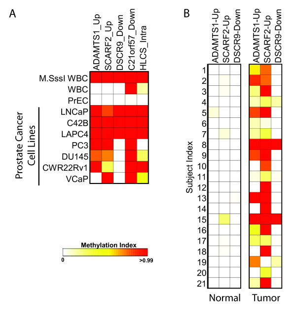 Hypermethylated regions in LNCaP compared to PrEC cells can serve as biomarkers for prostate cancer . A , DNA methylation at representative regions identified as hypermethylated in LNCaP cells compared to PrEC cells was measured in prostate cell lines using the COMPARE-MS assay as described previously [ 9 ]. The extent of methylation at each region is color scaled from white to red as shown, with white representing absence of detectable methylation, and red representing nearly complete methylation of all input copies. M.SssI-treated, completely-methylated, WBC DNA served as a positive control. All of the prostate cancer cell lines showed a high degree of methylation at multiple regions, while the PrEC normal prostate cells did not show any detectable methylation at these regions as expected. B , COMPARE-MS analysis of DNA methylation at three of the five regions from (A) showed significant methylation of at least one of the three regions in every tumor sample with very low or undetectable methylation in the matched normal tissue samples.