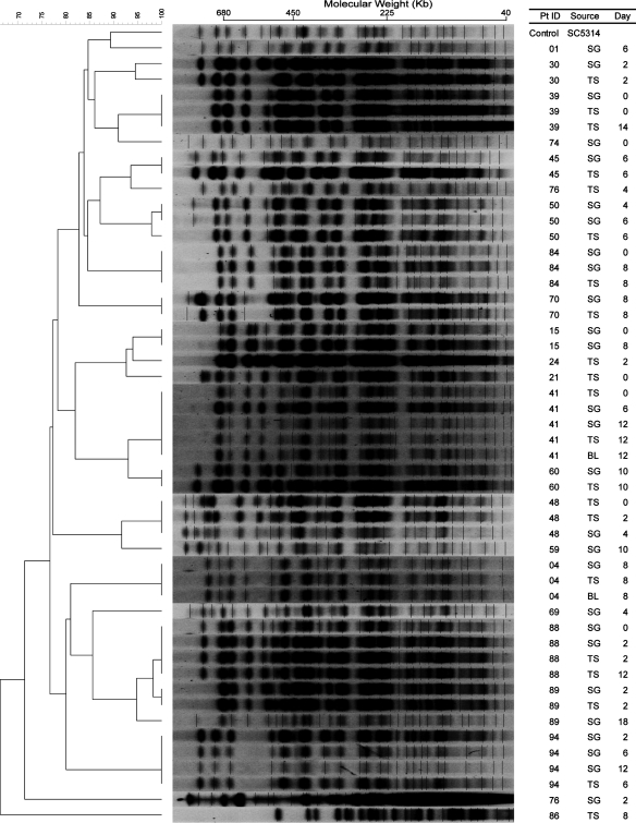 Pulsed-field gel electrophoresis (PFGE) patterns of Bss HII restriction endonuclease analysis of genomic DNA (REAG-B) with dendrogram for Candida albicans isolates. A genetic similarity percentage is shown above the dendrogram. Patient identification (Pt ID), sample site (Source), and number of days after admission to the intensive care unit that the strain was isolated (Day) are included along each PFGE lane. Saccharomyces cerevisiae DNA concatemers and λ DNA ladder were used as size markers. Sizes are measured in kilobases (Kb). C. albicans strain SC5314 (ATCC MYA-2876) was used as the control strain. Abbreviations: SG, supragingival dental plaque; TS, tracheal secretion; BL, bronchoalveolar lavage.