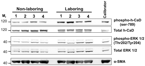h-CaD and ERK 1/2 expression in NIL and L term human myometrium. NIL and L myometrial protein extracts were separated by SDS-PAGE and western transferred onto nitrocellulose membrane. Membranes were probed with antibodies against phospho-h-CaD (1∶2000), total h-CaD (1∶2000), phospho-ERK 1/2 (1∶2000), total ERK 1/2 (1∶2000) and α-SMA (1∶10000). A total 8×NIL and 8×L samples were analysed. Representative image demonstrates detection of these proteins on a single blot containing 4×NIL and 4×L myometrial samples, as well as a calibrator sample that was included to allow densitometric comparison across separate blots. M r  = relative molecular mass×1000.