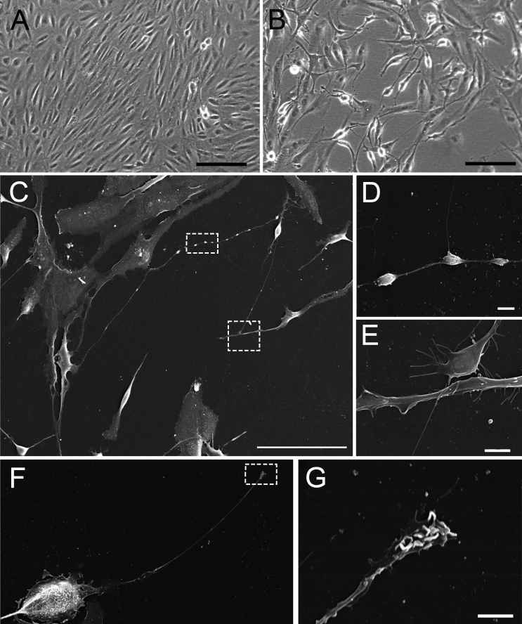 Fenretinide treatment induces a neuronal-like phenotype in ARPE-19 cells. Cells were treated on uncoated tissue culture plastic with media containing dimethyl sulfoxide ( A ) or 3 μM fenretinide (FR ; B ) once a day for 7 days, and the morphology was examined by phase microscopy. C : Scanning electron microscopy of FR-treated cells shows neural processes and the formation of varicosities and neurites (highlighted in the dashed boxes and shown at high magnification in D and E , respectively). F: Synaptic-like appositions were also present at the neurite terminal, shown at high magnification in G . Scale bars equal 200 μm in A and B , 100 μm in C , 4 μm in D , 20 μm in F , and 2 μm in E and G .