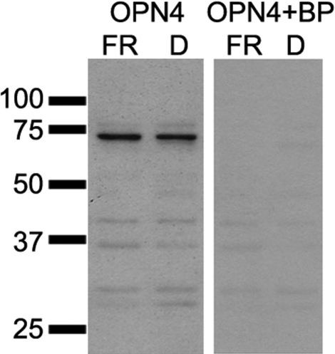 A melanopsin (OPN4) peptide-blocking experiment was performed to test the specificity of the antibody for western blot. Due to the presence of multiple bands on the OPN4 western blot the OPN4 antibody was pre-incubated with a fivefold excess of 15 amino acid N-terminal blocking peptide in 10% milk/TBS-T for 2 h at room temperature before hybridization. Proteins extracted from fenretinide (FR) and dimethyl sulfoxide (DMSO) treated cells were incubated with OPN4 antibody pre-incubated with the blocking peptide (OPN4+BP) or OPN4 antibody alone. A single band of approximately 70 kDa specific to OPN4 was absent in the western blot containing the blocking peptide.