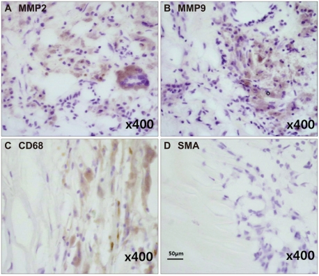 Carotid specimens that were immunohistochemically positive for MMP-2 (A) and MMP-9 (B) were also strongly positive for CD68 (C) but negative for SMA (D). MMP: matrix metalloproteinase, SMA: smooth-muscle actin.