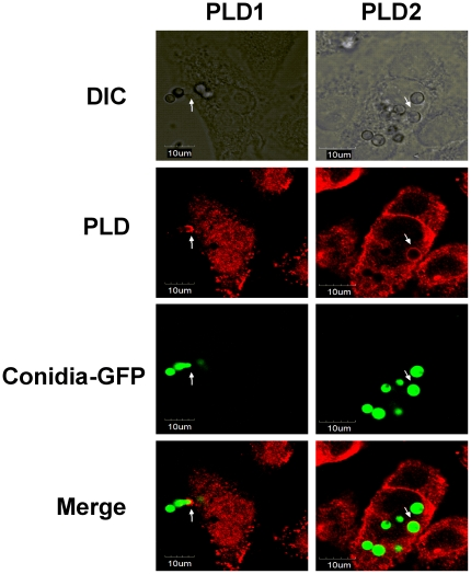 Both PLD1 and PLD2 are associated with A. fumigatus conidia during internalization into A549 cells. A549 cells were infected with the swollen conidia of A. fumigatus 13073 stably expressing green fluorescence protein (at an MOI of 10) for 30 min. The internalization of A. fumigatus into A549 cells was monitored by differential interference contrast (DIC) microscopy or immunofluorescence using laser confocal microscopy Olympus FluoView FV1000 (green, A. fumigatus conidia; red, PLD1 or PLD2). The images were processed with Olympus FluoView ver. 1.6., and the merged fluorescence images are shown. The data represent 3 similar experiments, and the arrows (white) indicate the association of internalized conidia with PLD. Scale bar, 10 µm.