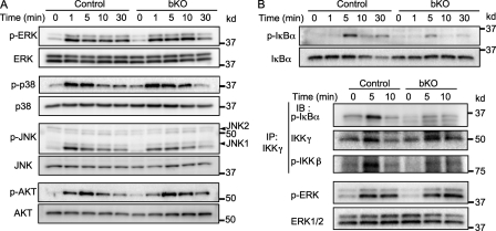 BCR-dependent activation of the canonical NF-κB pathway is impaired in CIN85 bKO B cells. (A) Purified spleen B cells were stimulated with 10 µg/ml anti-IgM F(ab') 2 for indicated times (minutes). The cells were lysed and subjected to SDS-PAGE. Transferred membranes were probed with the indicated antibodies. (B) Spleen B cells from control or CIN85 bKO mice were stimulated with 10 µg/ml anti-IgM F(ab') 2 fragment for the indicated times. After stimulation, some of the cells were subjected to SDS-PAGE to measure the phosphorylation status of IκBα (top). Other cells were collected, precipitated by anti–IKK-γ antibody and subjected to an IKK kinase assay using GST-IκBα as a substrate. The amount of phosphorylated GST-IκBα was detected by Western blotting as described in the Materials and methods (bottom). Phosphorylation status of IKK-β was also analyzed by Western blotting. p-ERK was examined with whole cell lysate. Representative data of at least three independent experiments are shown.