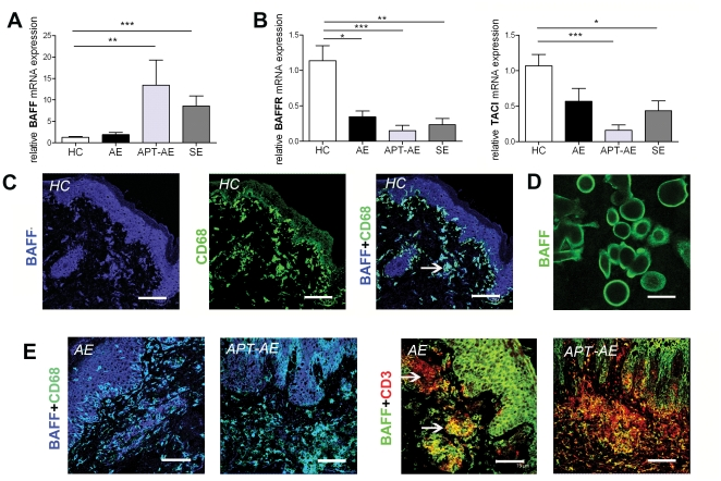 Expression of BAFF in skin of HC and lesional skin of AE and SE determined by quantitative RT-PCR and immunofluorescence. (A–B) Relative mRNA expression of BAFF, BAFFR and TACI in skin of HC (n = 9), lesional skin of AE (n = 9), APT-AE (n = 6) and SE (n = 6). Data shown as mean ± SEM, *p