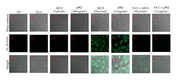 Effect of low or high concentration of <t>AECS/p-BQ</t> on reactive oxygen species (ROS) production in cultured A549 cells and its prevention by vit C. Serum-starved A549 cells grown on coverslips were either nontreated (NT) or exposed to 2 μ L/mL AECS, 50 μ L/mL AECS, 200 ng/mL p-BQ or 2.5 μ g/mL p-BQ for 1 hr with or without vitamin C (40 μ g/mL) pretreatment in serum-free medium for 15 min. After treatment, cells were incubated in fresh media containing H 2 DCFDA for 30 min and <t>PBS</t> washed twice, and fluorescent images were captured.