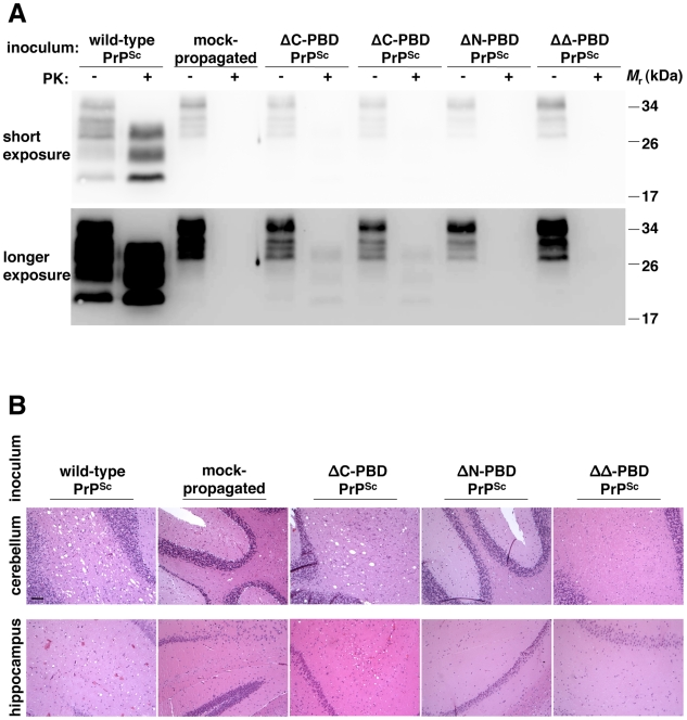 Biochemical and neuropathological analysis of mice inoculated with in vitro -generated PrP Sc molecules. Brains were dissected from wild-type mice showing terminal scrapie signs (PrP Sc and ΔC-PBD PrP Sc inocula) or similarly aged mice not displaying scrapie signs (mock-propagated, ΔN-PBD PrP Sc , and ΔΔ-PBD PrP Sc inocula). ( A ) Equivalent amounts of 10% brain homogenate were treated with buffer (−PK) or 25 µg/mL proteinase K (+PK to show PrP Sc ) and detected by anti-PrP (6D11) immunoblot. A greater exposure of the same immunoblot is displayed below, to illustrate samples containing low amounts of PrP Sc . ( B ) Neuropathology of cerebellum and hippocampus. Brain sections were stained with hematoxylin and eosin (H E). The black bar denotes 100 µm.