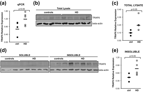 In HD post-mortem brain, TRAF6 expression is increased, and TRAF6 protein accumulates in the insoluble fraction. a , total RNA was extracted from parietal cortex of HD and control brains. TRAF6 mRNA was measured by quantitative real-time PCR relative to β-actin. b , total protein lysates from HD and controls were prepared, and endogenous TRAF6 expression was monitored with anti-TRAF6 antibody. Loading was normalized by protein quantification and verified with anti-β-actin antibody. Representative images from three independent experiments are shown. c , densitometric analysis of protein bands was performed using Adobe Photoshop CS3. Expression of endogenous TRAF6 in total lysates was normalized relative to β-actin. Statistical analysis was performed with a Student's t test. d , soluble and insoluble fractions from HD and control brains were prepared and analyzed for TRAF6 distribution. Lysates were normalized for total protein content. Anti-TRAF6 and actin antibodies were used. Images are representative of three independent experiments. e , quantification of TRAF6 expression in insoluble fraction was done as described in c .