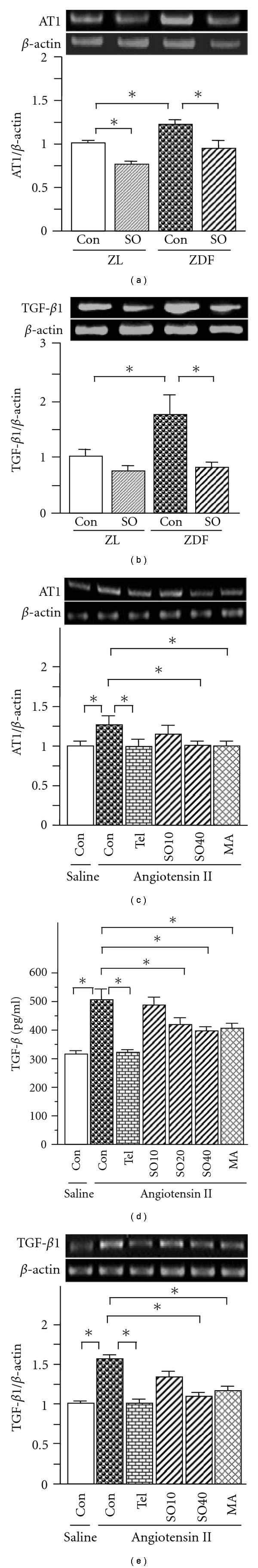 Renal expression of AT1 (a) and TGF- β 1 (b) in ZL and ZDF rats, and levels of AT1 (c) and TGF- β 1 (d) mRNAs, and TGF- β protein (e) in rat mesangial cells. In cell culture, SO (SO10: 10; SO20: 20 and SO40: 40 μ g/ml), MA (25 μ M) or telmisartan (Tel. 10 μ M) was added 1 h prior to treatment with angiotensin II (10 −6 M), followed by twenty-four hours incubation. Total RNA was extracted from renal tissues and the mesangial cells using TRIzol, respectively. The relative levels of specific mRNAs were determined by RT–PCR. Results were normalized to β -actin. In a parallel experiment, the medium was collected after mesangial cells were treated with the test agents in combination with angiotensin II. TGF- β protein level was determined by commercial ELISA kit according to the manufacturer's instructions. All values are means ± SEM ( n = 5, each group in vivo ; n = 3, each group in vitro ). * P