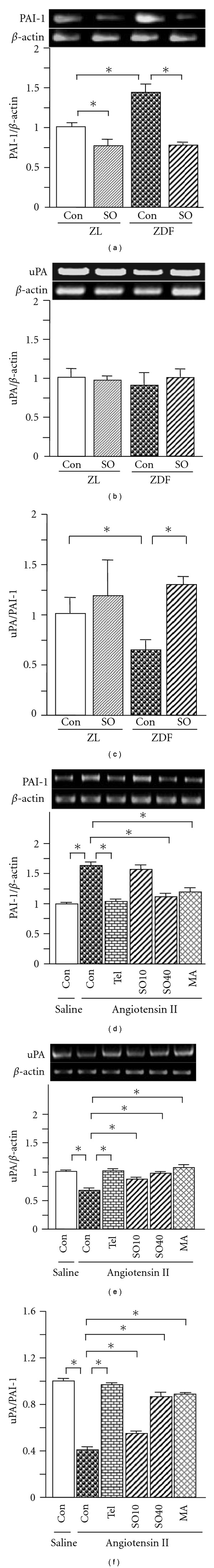 Renal expression of PAI-1 (a), uPA (b) mRNAs, and the ratio of uPA to PAI-1 (c) in ZL and ZDF rats, and levels of PAI-1 (d) and uPA (e) mRNAs, and the ratio of uPA to PAI-1 (f) in rat mesangial cells. In cell culture, SO (SO10: 10 and SO40: 40 μ g/ml), MA (25 μ M) or Tel (10 μ M) was added 1 h prior to treatment with angiotensin II (10 −6 M), followed by 24-h incubation. Total RNA was extracted from renal tissues and the mesangial cells using TRIzol, respectively. The relative levels of specific mRNAs were determined by RT–PCR. Results were normalized to β -actin. All values are means ± SEM ( n = 5, each group in vivo ; n = 3, each group in vitro ). * P