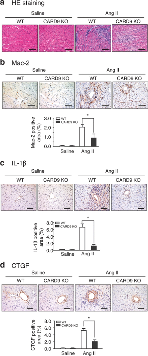 Cytosolic adaptor caspase recruitment domain 9 (CARD9) deficiency inhibits angiotensin II (Ang II) infusion–induced proinflammatory cell infiltration and expression of inflammatory cytokines. ( a ) Heart sections from wild-type (WT) and CARD9 −/− mice treated with saline or Ang II at 1,500 ng/kg/min for 7 days were stained with hematoxylin and eosin (HE). ( b – d ) Heart sections from WT and CARD9 −/− mice were detected by immunohistochemistry with antibodies against Mac-2, <t>interleukin-1β</t> (IL-1β), and connective tissue growth factor (CTGF) (top). Bar graph shows quantified areas (bottom). Bar = 50 µm. Data represent mean ± s.e.m. ( n = 5). * P
